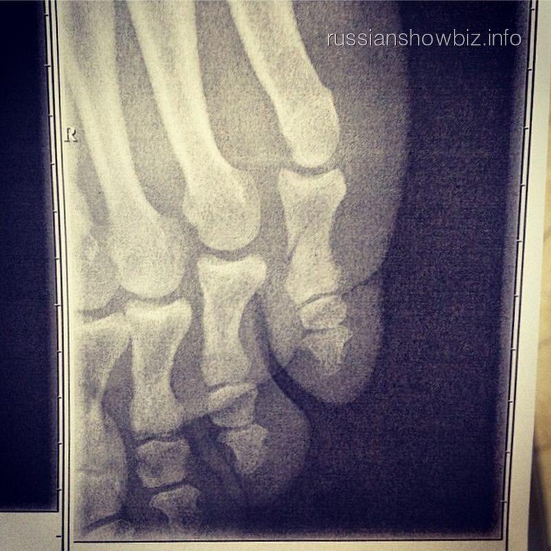 Рентгеновский снимок ноги Родиона Газманова