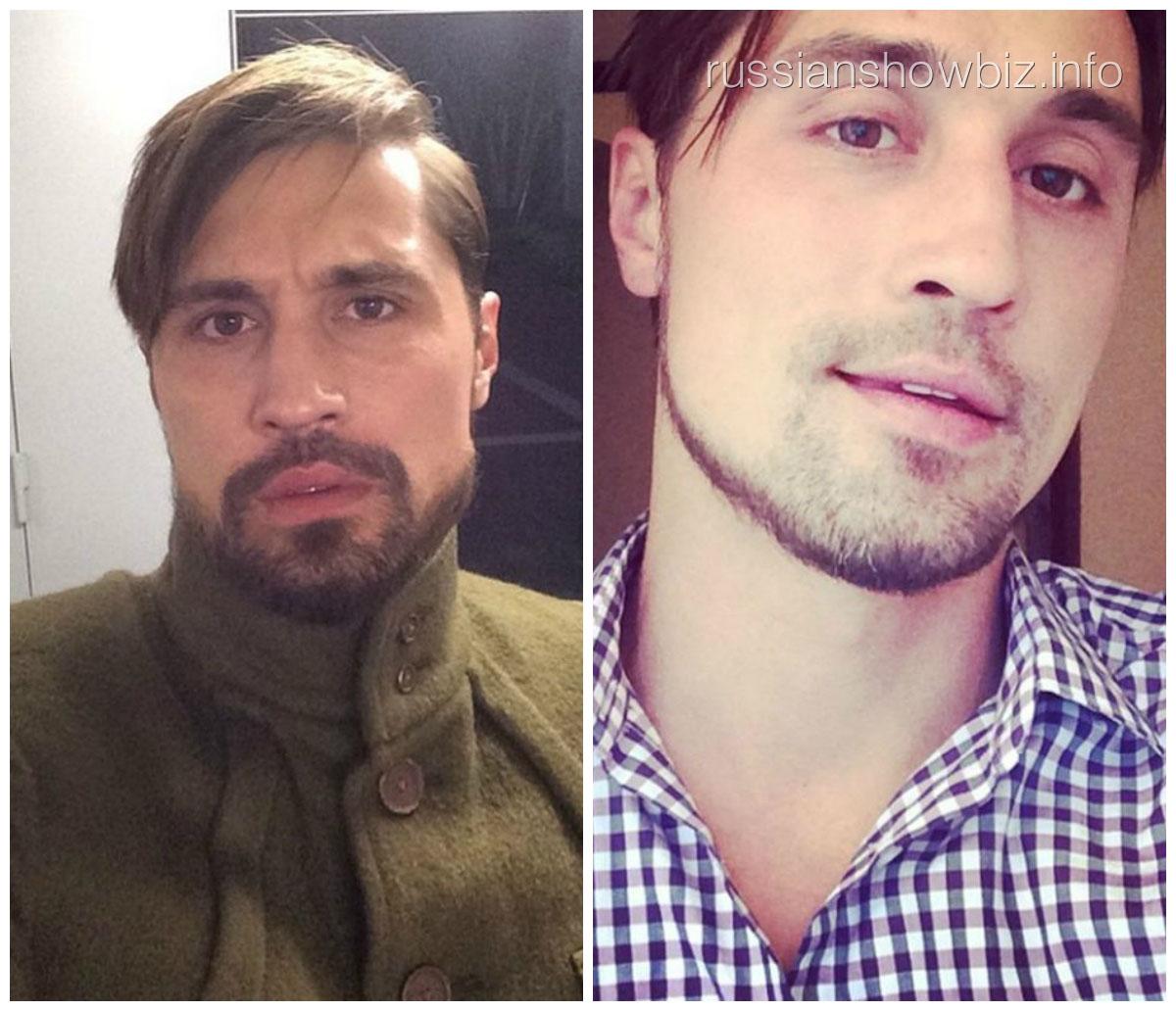 Дима Билан с бородой и без нее