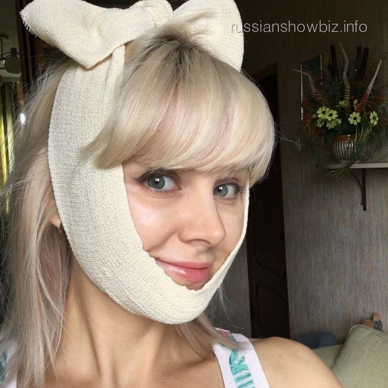 Эстрадная певица Натали потратила напластику скул 30 000 руб.